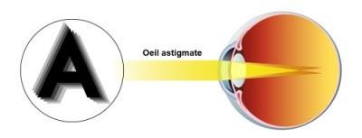 Illustration astigmatisme