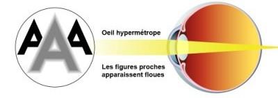 Illustration hypermétropie