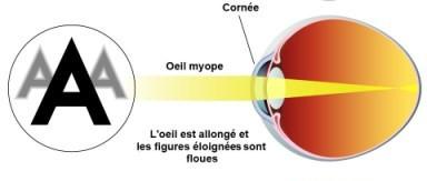 Illustration myopie